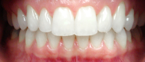 Adult Treatment (Invisalign) After