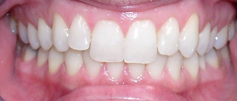 Adult Treatment (Invisalign) Before